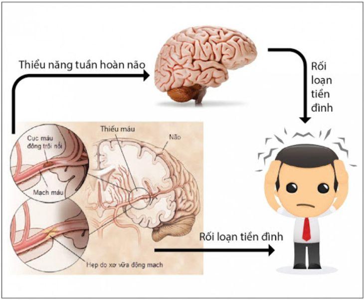 Thiếu máu lên não là một trong những nguyên nhân gây rối loạn tiền đình