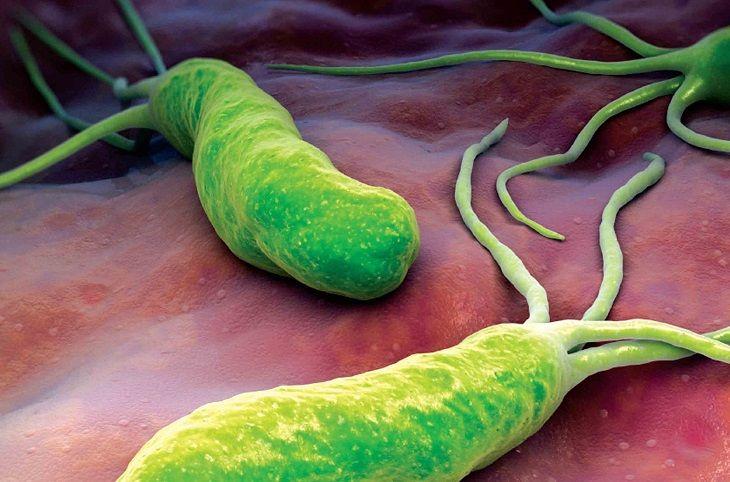 Khuẩn Hp là một trong số nguyên nhân chính gây bệnh viêm loét dạ dày ở trẻ