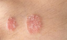 Nổi mẩn đỏ hình tròn không ngứa là dấu hiệu của bệnh gì? Có nguy hiểm không?