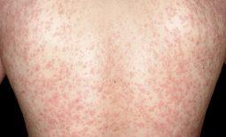 Nổi mẩn đỏ khắp người không sốt không ngứa ở người lớn