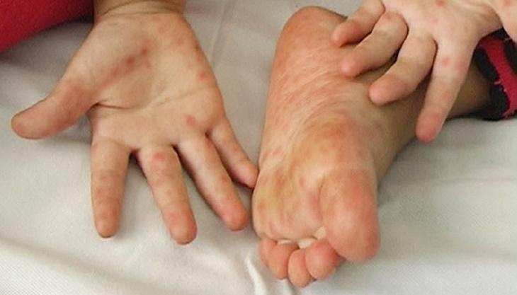 Ngứa bàn tay bàn chân khiến bạn luôn cảm thấy khó chịu, khó làm được việc