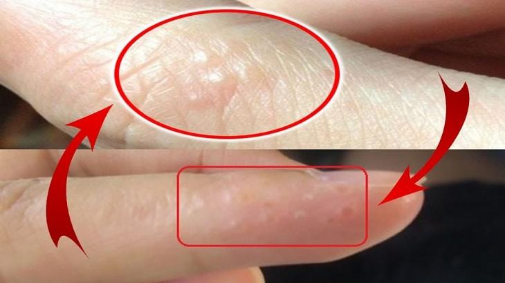 Hình ảnh nổi mẩn đỏ ngứa ở chân tay