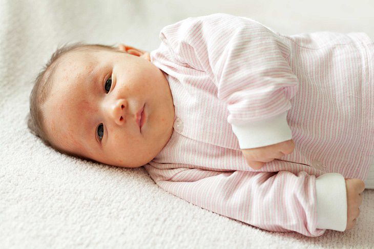 Trẻ sơ sinh nổi mụn, mẩn đỏ do nhiều nguyên nhân