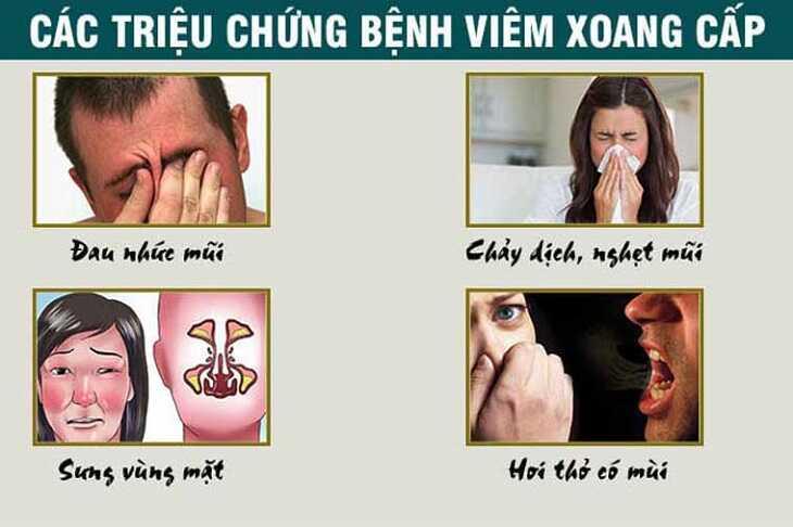 Viêm xoang cấp và các triệu chứng