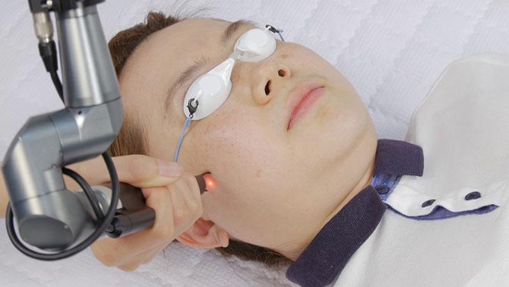 Phương pháp quang trị liệu không gây biến chứng nguy hiểm, điều trị tận gốc trong thời gian ngắn