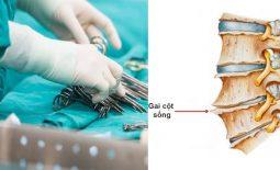 Các phương pháp phẫu thuật phổ biến hiện nay
