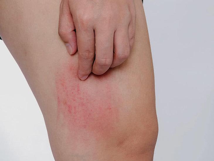 Gãi mạnh sẽ làm tổn thương, nhiễm trùng da, mẩn ngứa lâu khỏi hơn