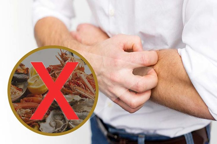 Người nổi mẩn ngứa sau sốt không nên hải sản vỏ cứng để tránh dị ứng