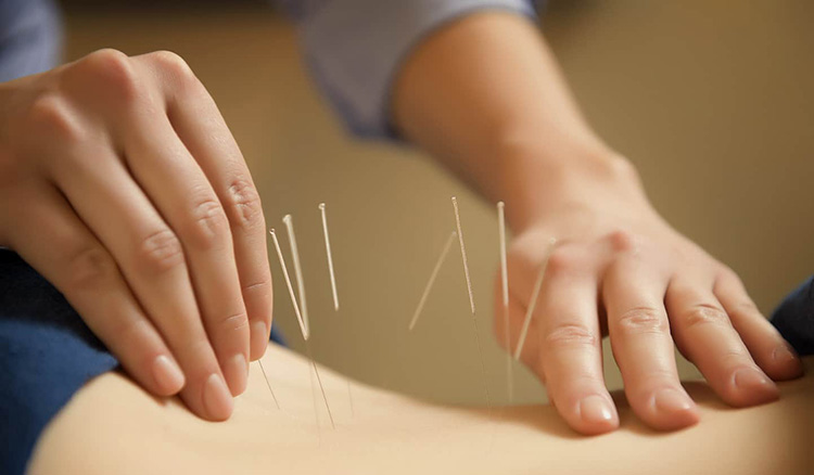 Châm cứu là phương pháp tác động trực tiếp vào các huyệt đạo để giảm đau, giãn cơ.