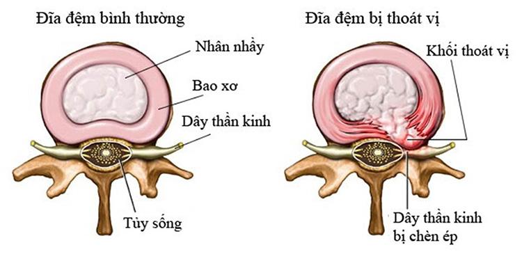 Thoát vị đĩa đệm là tình trạng nhân nhầy tràn ra chèn ép lên rễ thần kinh.