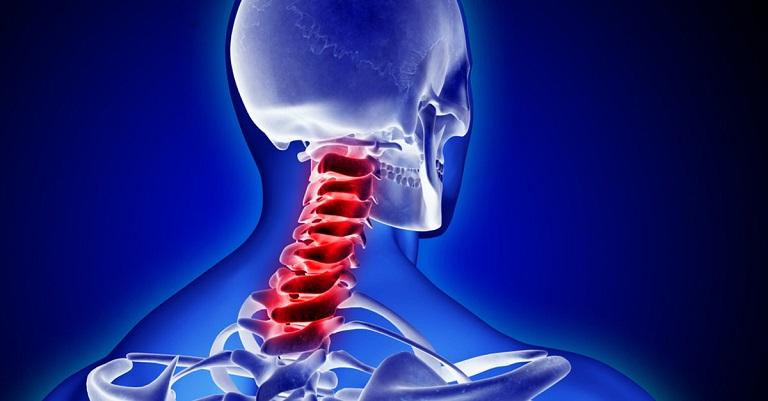 Cổ và thắt lưng là hai vị trí bị thoái hóa cột sống phổ biến nhất