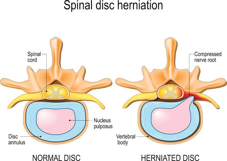 Thoát vị đĩa đệm là tình trạng nhân nhày tràn ra ngoài chèn ép dây thần kinh và ống sống