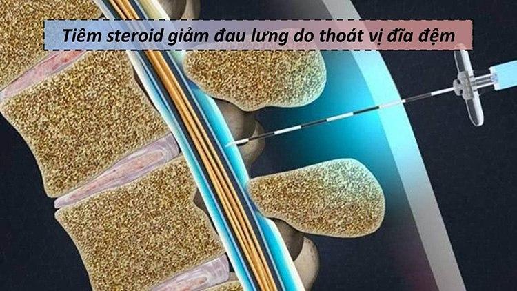 Tiêm ngoài màng cứng là liệu pháp đưa thuốc Steroid vào không gian xung quanh tủy sống.