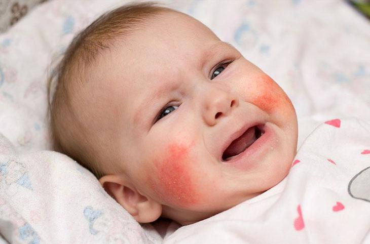 Trẻ sinh đôi cùng trứng có tỉ lệ mắc bệnh nhiều hơn sinh đôi khác trứng