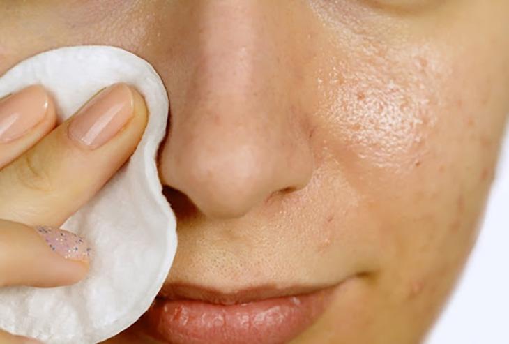 Trị viêm da dầu tận gốc cần dưỡng ẩm cho da và lựa chọn sản phẩm dịu nhẹ