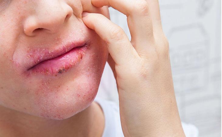 Biểu hiện rõ nét nhất của bệnh chính là đỏ, rát kèm ngứa ngáy
