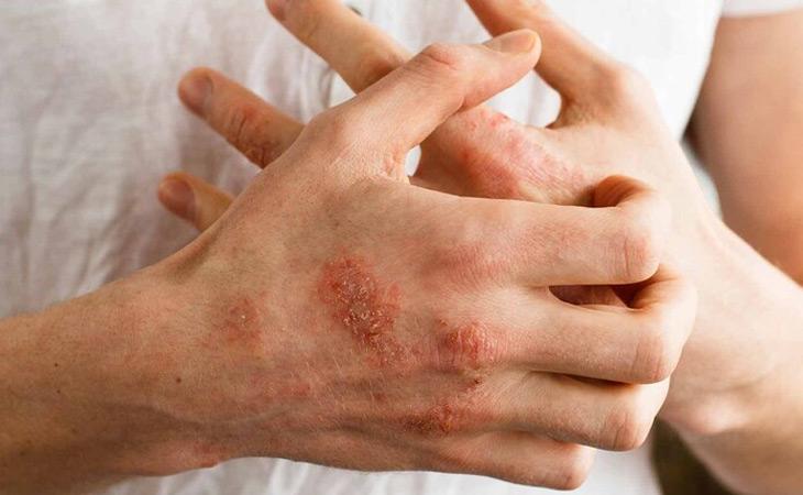 Ngứa là một trong những biểu hiện phổ biến của bệnh