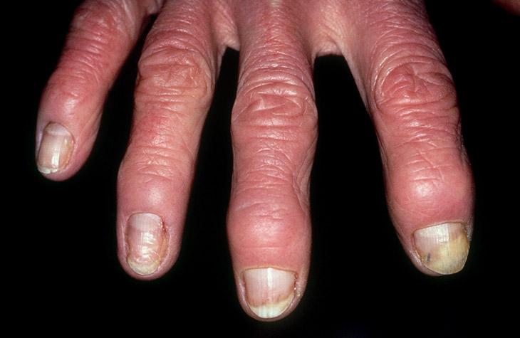 Bệnh gây nên những biến chứng về khớp nguy hiểm