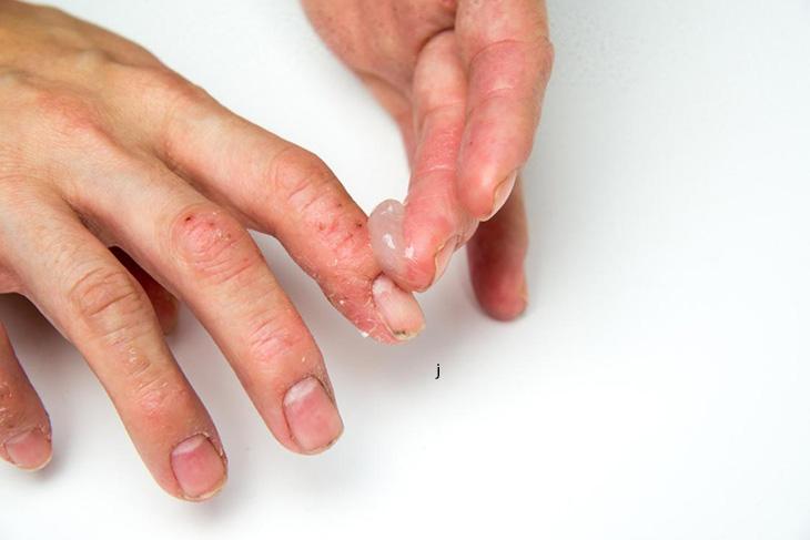 Bôi thuốc trị vảy nến móng tay