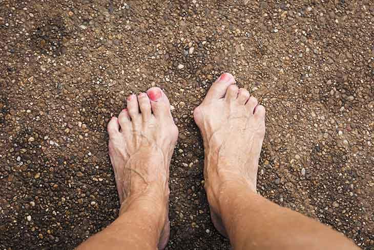 Biến chứng viêm khớp, biến dạng khớp do bệnh vảy nến ở chân gây ra