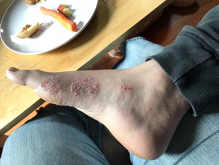 Những vết vảy nến ban đầu xuất hiện ở chân