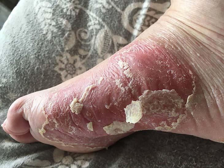 Bệnh vảy nến ở chân khá phổ biến hiện nay