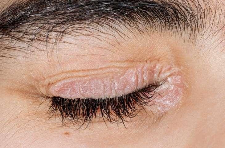 Vảy nến ở da mặt xuất hiện ở mí mắt