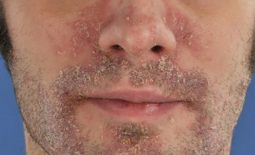 Vảy nến ở mũi là bệnh gì? Điều trị thế nào an toàn và nhanh khỏi