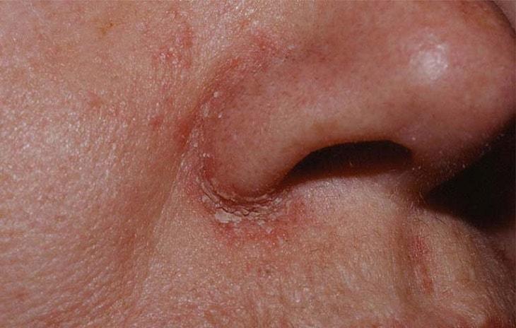 Vảy nến ở mũi là bệnh gì? Có đáng sợ không?