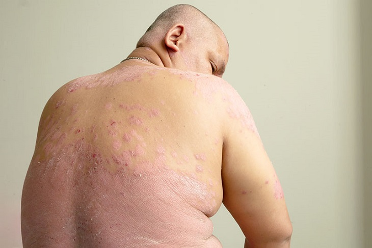 Béo phì là một trong những nguyên nhân gây bệnh vảy nến ở nách