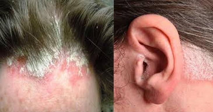Vảy nến ở vành tai có thể lây lan sang các vùng da lân cận