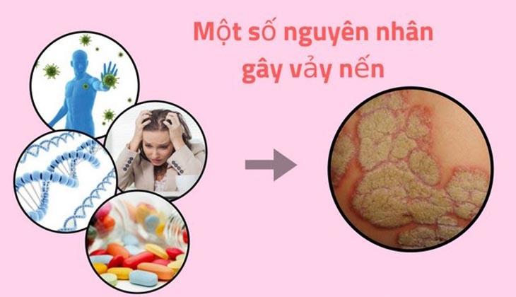 Một số nguyên nhân gây bệnh vảy nến ở tay