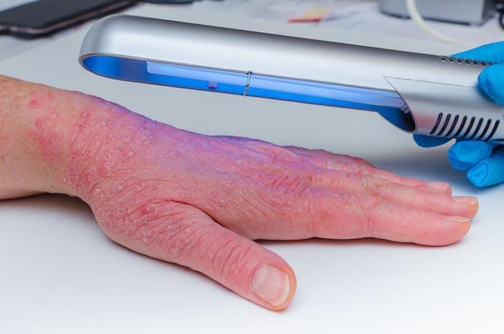 Điều trị vảy nến ở tay bằng Quang hóa trị liệu