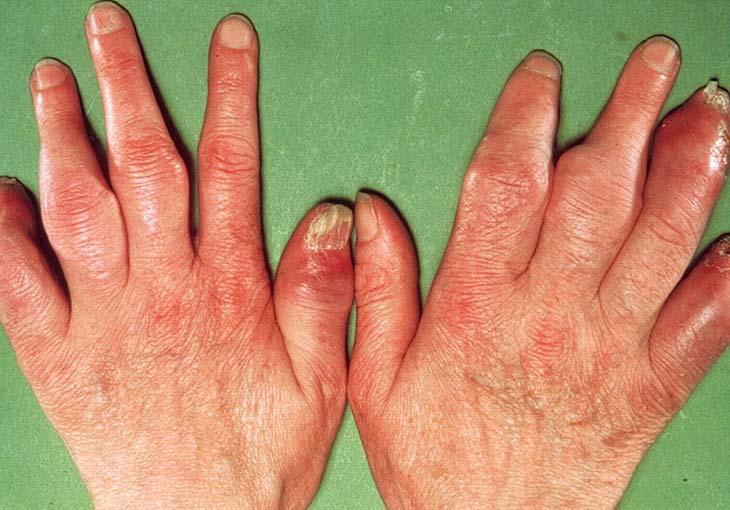 Khớp bị biến dạng cho bệnh vảy nến ở khớp