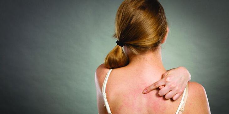 Triệu chứng viêm da cơ địa bùng phát từng đợt và dễ tái phát