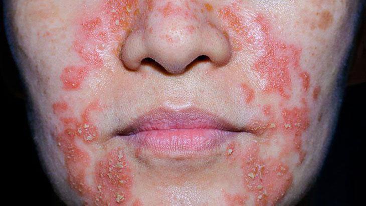Hình ảnh viêm da cơ địa ở mặt người lớn