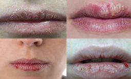 Hình ảnh mô tả các cấp độ của bệnh viêm da cơ địa xuất hiện ở môi