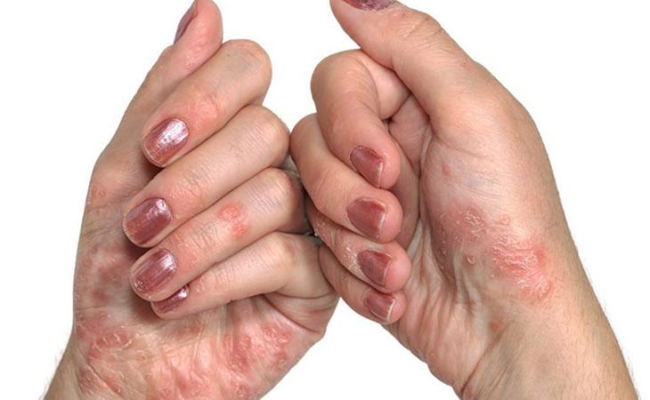 Hình ảnh viêm da cơ địa ở lòng bàn tay và ngón tay