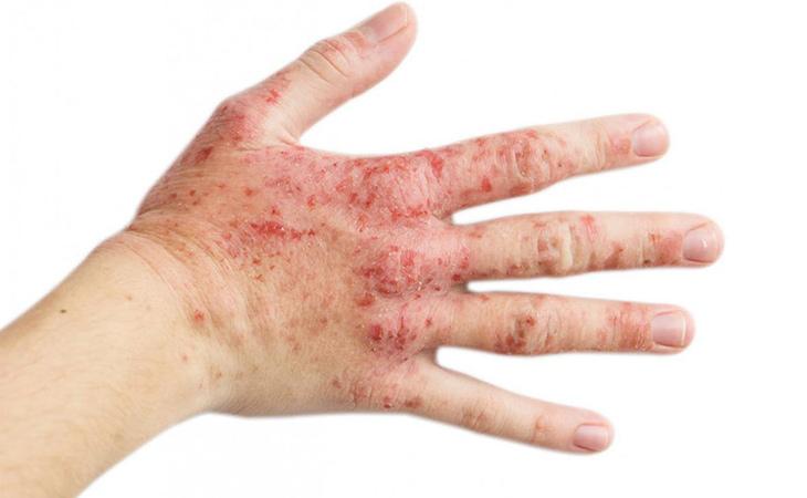 Hình ảnh mô tả bệnh viêm da cơ địa ở tay