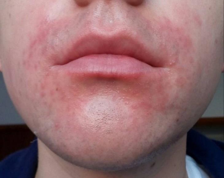 Viêm da cơ địa quanh miệng: Nguyên nhân, triệu chứng và cách điều trị