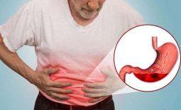 Viêm dạ dày là một trong những nguyên dẫn đến xuất huyết tiêu hóa