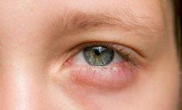 Viêm xoang biến chứng mắt