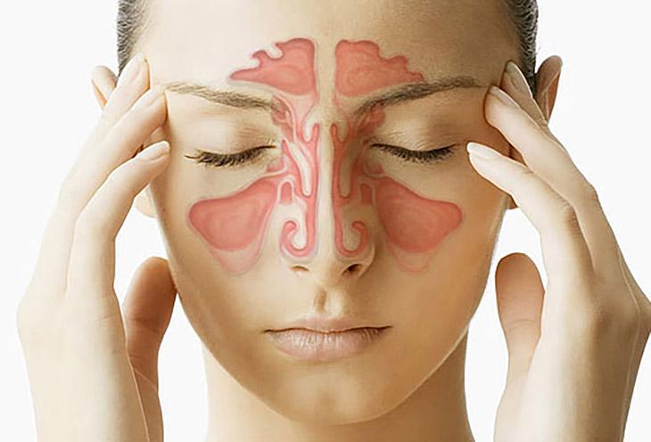 Viêm xoang sàng 2 bên là tình trạng viêm nhiễm tại cả xoang sàng trước và xoang sàng sau
