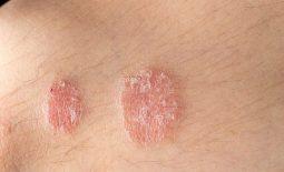 Bệnh vẩy nến có lây không? Cách phòng ngừa đảm bảo hiệu quả