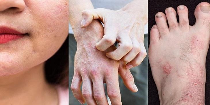 Biểu hiện viêm da cần nhận biết