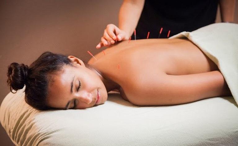 Châm cứu, bấm huyệt giúp người bệnh thư giãn, giảm đau nhức, chống viêm hiệu quả