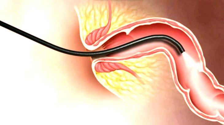 Bệnh trĩ ở giai đoạn nhẹ thường không ảnh hưởng gì nhiều đến quá trình nội soi đại tràng