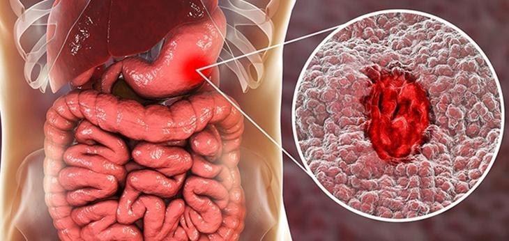 Việc điều trị cấp cứu xuất huyết tiêu hóa vô cùng quan trọng vì nó ảnh hưởng tới sức khỏe của người bệnh