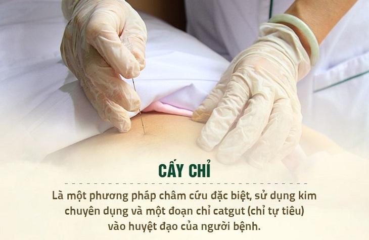 Cấy chỉ là liệu pháp chữa bệnh không dùng thuốc an toàn, hiệu quả