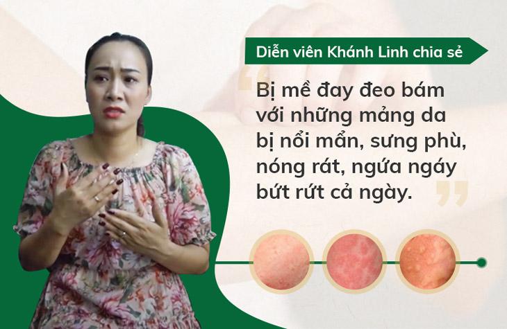 Diễn viên Khánh Linh đã từng là nạn nhân của mề đay mẩn ngứa sau sinh